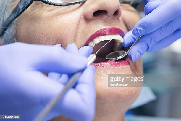 Macro shot of senior female teeth at dentist office