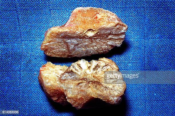Macrophotograph of a uric acid stone