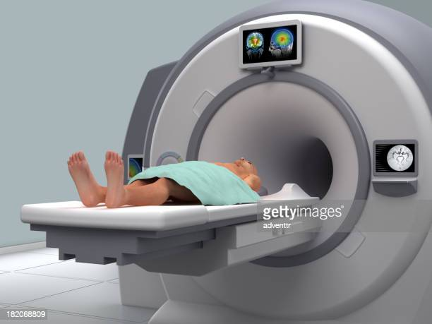 磁気共鳴イメージング(MRI )スキャン