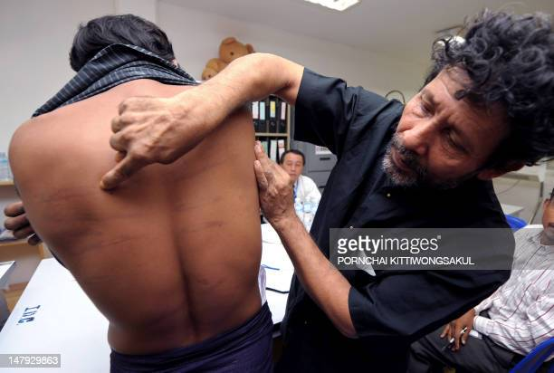 Mahmoud Hussain a Muslim Rohingya from Myanmar points out scars on his compatriot's back allegedly inflicted after Myanmar soldier beat him as he...