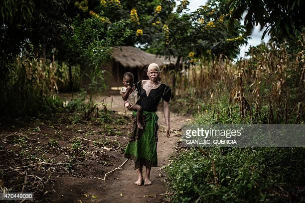 Mainasi Issa a 23yearold Malawian albino woman carries her towyearold daughter Djiamila Jafali as she poses outside her hut in the traditional...