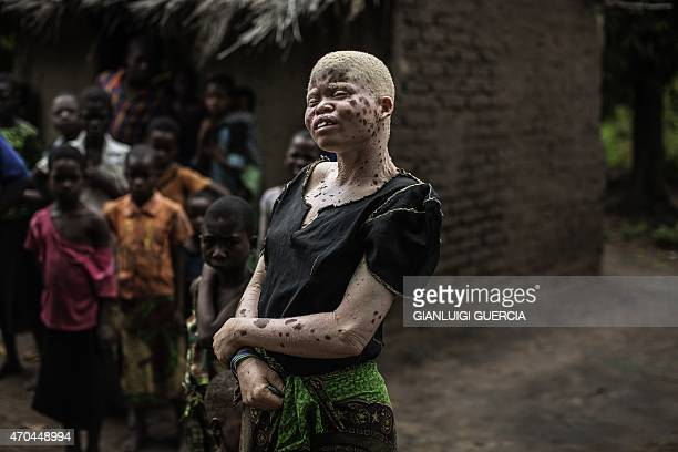 Mainasi Issa a 23yearold Malawian albino woman stands outside her hut in the traditional authority area of Nkole Machinga district on April 17 2015...