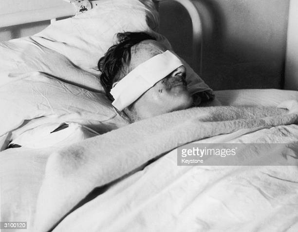 Major H E Collins lies in a hospital bed with a bandage covering his eyes after being chloroformed and abducted by Jewish terrorists in Palestine 2nd...