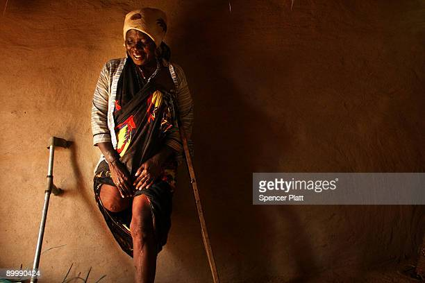 Mako Bakar Bakaro, who lost a leg in fighting in Mogadishu, Somalia in 2008, stands against the wall of her hut August 21, 2009 in Dadaab, the...