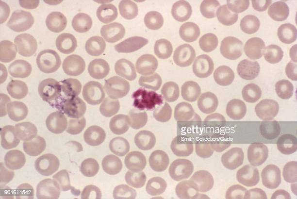 Malarial schizont clump of platelets revealed in a blood smear micrograph film using Giemsa stain 1977 Image courtesy Centers for Disease Control /...