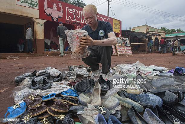 A Malawian albino Jammtain Frenando puts out shoes for sale on March 21 2015 at the Mitundu Trading Center in a suburb of Lilongwe AFP PHOTO / AMOS...