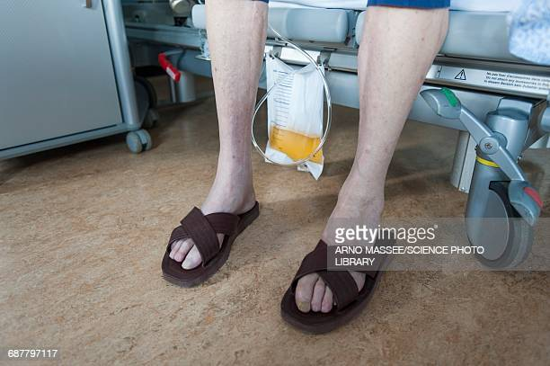 male patient wearing sandals with urostomy bag - old man feet stock pictures, royalty-free photos & images
