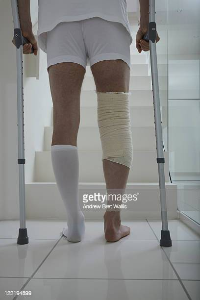 male patient with crutches at foot of staircase