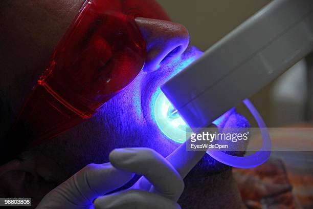 A male tourist is getting a teeth bleaching and soft whitening treatment with a special LED light and has to wear protection glasses at the dental...