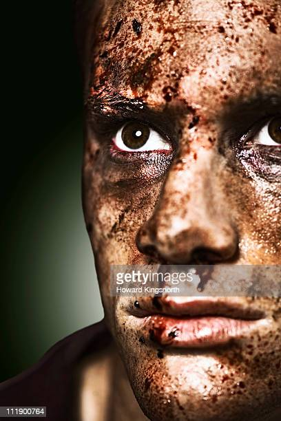 male with black eye and bloddied face - beaten up face stock photos and pictures
