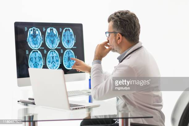 males doctor examining  brain mr - brain tumour stock pictures, royalty-free photos & images