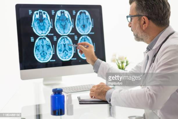 males doctor examining  brain mr - cerebrum stock pictures, royalty-free photos & images