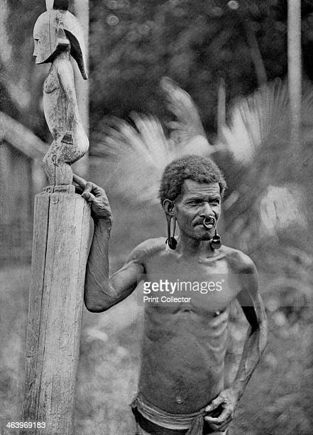 Malformation of the ears Solomon Islands 1920 A man with pierced ear lobes enlarged by discs and a nose ring A print from Customs of the World...