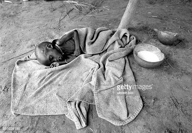 A malnourished boy in a feeding centre in Ayod in the south of Sudan