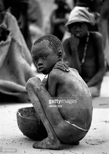 A malnourished boy plagued by flies in a feeding centre in Waat in the south of Sudan