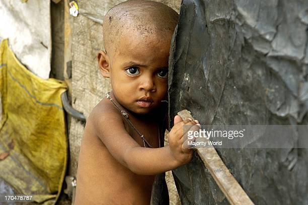 A malnourished child Dharabi Mumbai Maharashtra India April 9 2009 Despite a robust economy with 9 percent annual growth in recent years inflation...