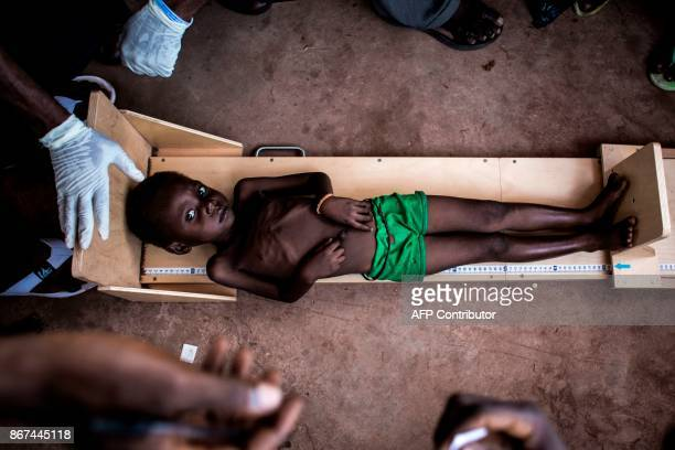 TOPSHOT A malnourished child gets measured in a clinic treating cases of sever malnourishment on October 26 2017 in Tshikapa in the restive region of...