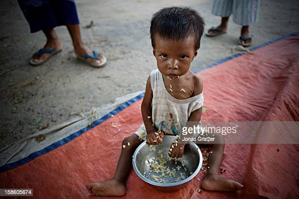 A malnourished child having a meal of rice Despite large and fertile agricultural land malnutrition is a major problem in Burma Burma is preparing to...