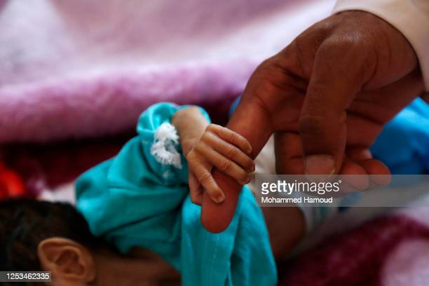 Malnourished child holds the finger of his father as he receives treatment at a hospital on June 30, 2020 in Sana'a, Yemen. Buffeted by five years of...