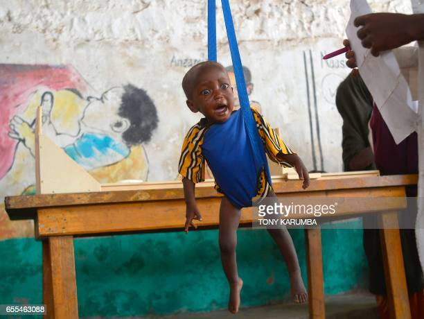 TOPSHOT A malnourished child is processed by an aid worker for a UNICEF funded health programme catering to children displaced by drought at a...