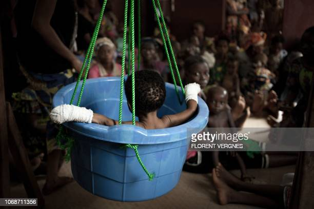 A malnourished child is weighed while other children wait their turn in the Bangui paediatric complex on December 4 2018 In Central African Republic...