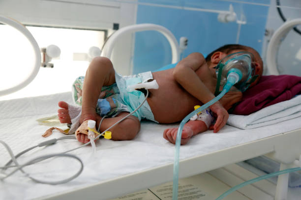 YEM: Children Face Starvation In War-Torn Yemen