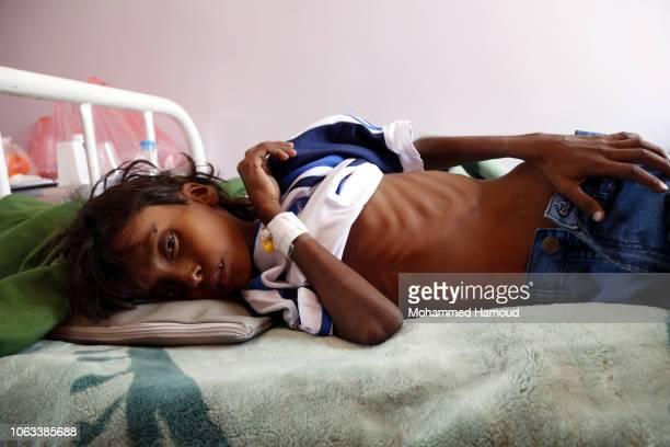 A malnourished child named Ali Mohamed aged 11 from the Yemen's port city of Hodeidah lies on a bed while he receives treatment at a hospital on...