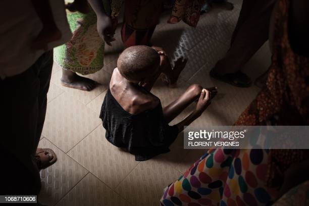 TOPSHOT A malnourished child waits on the ground for consultation at the Bangui paediatric complex on December 4 2018 In Central African Republic...