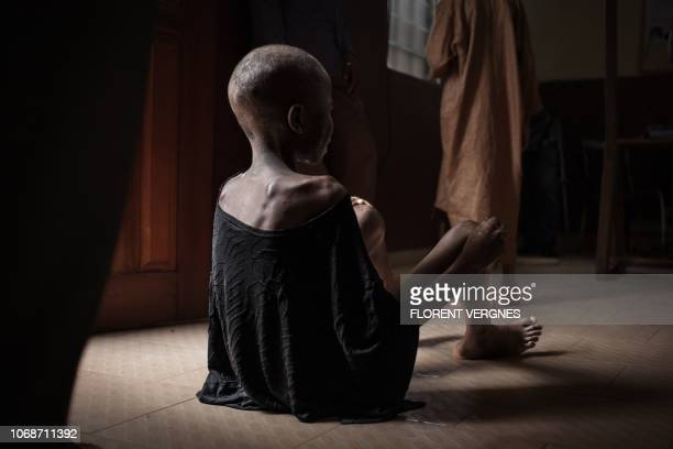 A malnourished child waits on the ground for consultation at the Bangui paediatric complex on December 4 2018 In Central African Republic infant...