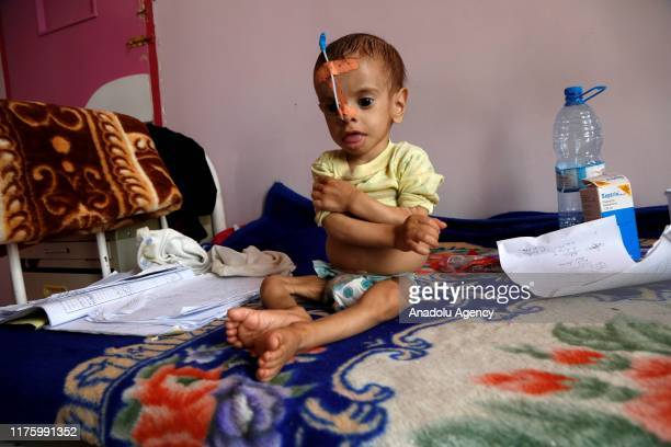 Malnourished infant is seen at Sabeen hospital in the Yemeni capital Sanaa, on October 07, 2019. While more than 820 million people worldwide...
