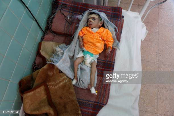 Malnourished infant receives treatment at Sabeen hospital in the Yemeni capital Sanaa, on October 07, 2019. While more than 820 million people...