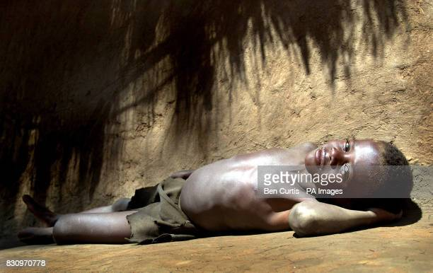 Malnourished Kalilani Beulani lies under the harsh sun in Mphanda village in central Malawi The United Nations currently estimates 181 million people...