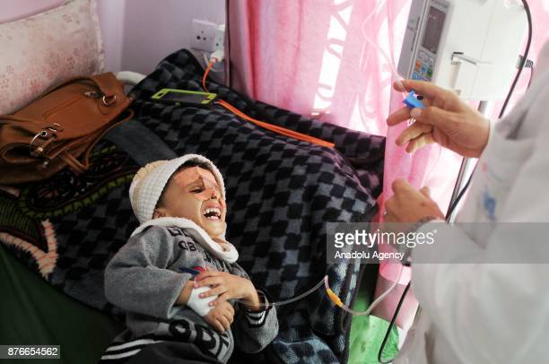 A malnourished kid cries as he receives medical treatment at al Sabeen Maternal Hospital in Sanaa Yemen on Universal Children's Day on November 20...