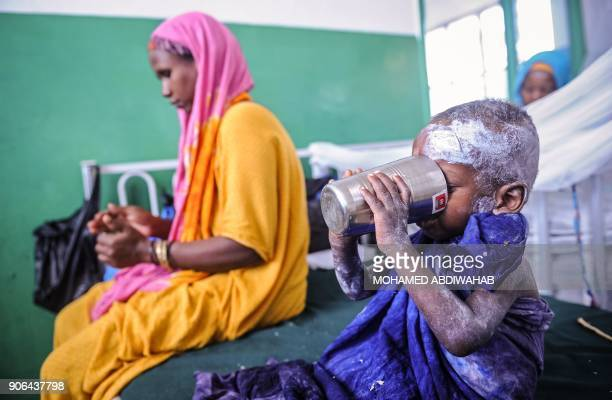 TOPSHOT A malnourished Somali child drinks water as he sits on a bed waiting for medical attention at the paediatric ward of Banadir public hospital...