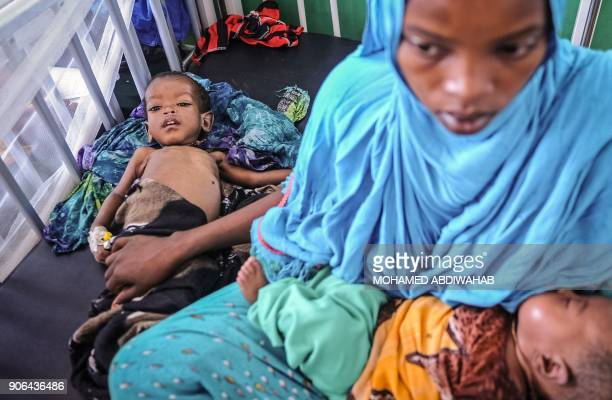 A malnourished Somali child lies on the bed as he waits for medical attention at the paediatric ward of Banadir public hospital where refugees...