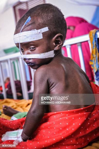 A malnourished Somali child sits on a bed waiting for medical attention at the paediatric ward of Banadir public hospital where refugees receive free...