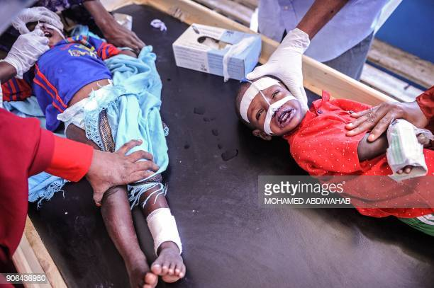 Malnourished Somali children receive medical treatment at the paediatric ward of Banadir public hospital where refugees receive free medical care by...