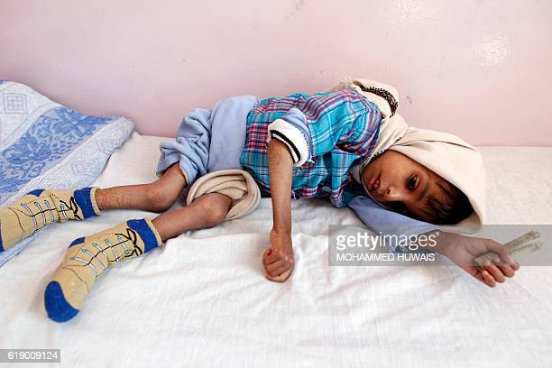 A malnourished Yemeni boy receives treatment at a therapeutic feeding centre in the capital Sanaa on October 29 2016 / AFP PHOTO / MOHAMMED HUWAIS