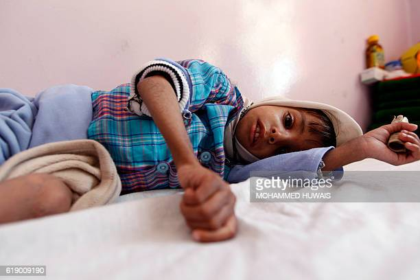 A malnourished Yemeni boy receives treatment at a therapeutic feeding centre in the capital Sanaa on October 29 2016 / AFP / MOHAMMED HUWAIS