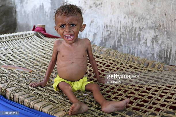 A malnourished Yemeni boy sits on a wooden bench on September 26 2016 in an impoverished coastal village on the outskirts of the rebelheld Yemeni...