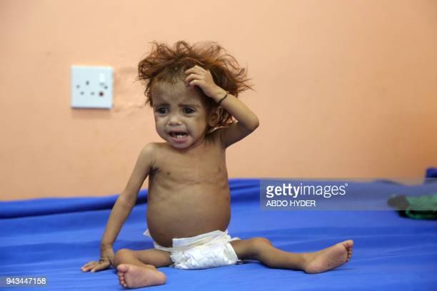 TOPSHOT A malnourished Yemeni child awaits treatment at a hospital in the Yemeni port city of Hodeidah on April 8 2018 / AFP PHOTO / ABDO HYDER