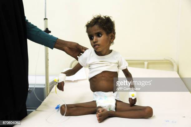 A malnourished Yemeni child receives treatment at a hospital in the Yemeni port city of Hodeidah on November 5 2017 Humanitarian responders have this...