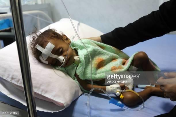 TOPSHOT A malnourished Yemeni child receives treatment at a hospital in the Yemeni port city of Hodeidah on November 21 2017 The United Nations has...