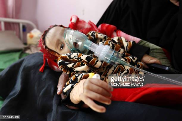 TOPSHOT A malnourished Yemeni child receives treatment at a hospital in the capital Sanaa on November 22 2017 The United Nations has warned that...