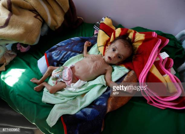 A malnourished Yemeni child receives treatment at a hospital in the capital Sanaa on November 22 2017 The United Nations has warned that warwracked...