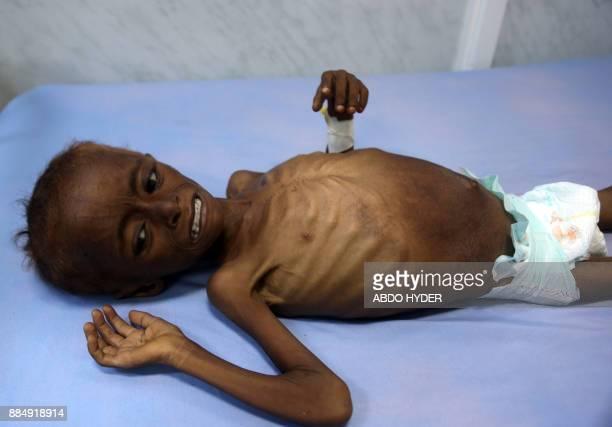 TOPSHOT A malnourished Yemeni child receives treatment at a hospital in the Yemeni port city of Hodeidah on December 3 2017 / AFP PHOTO / ABDO HYDER