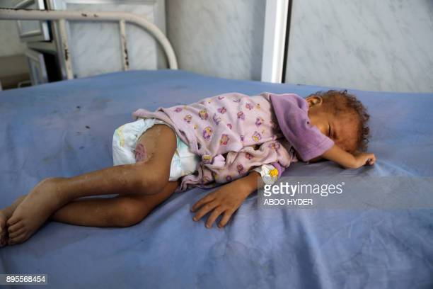 A malnourished Yemeni child receives treatment at a hospital in the Yemeni port city of Hodeidah on December 19 2017 The United Nations has listed...
