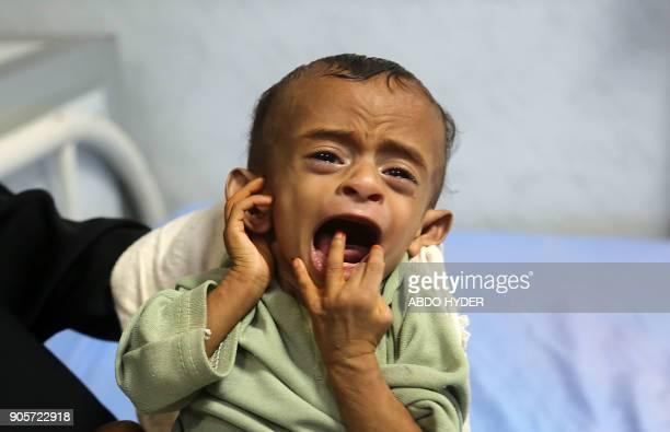 A malnourished Yemeni child receives treatment at a hospital in the Yemeni port city of Hodeidah on January 16 2018 More than threequarters of...