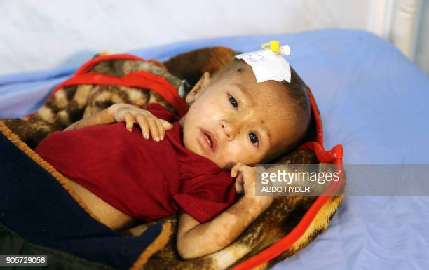 A malnourished Yemeni child receives treatment at a hospital in the Yemeni port city of Hodeidah on January 16 2018 The war in Yemen has killed or...