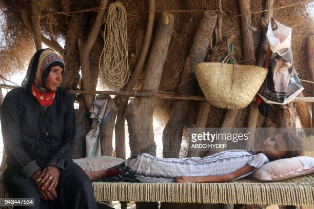 TOPSHOT A malnourished Yemeni girl sits on a wooden bench in an impoverished coastal village on the outskirts Yemeni port city of Hodeidah on April 8...